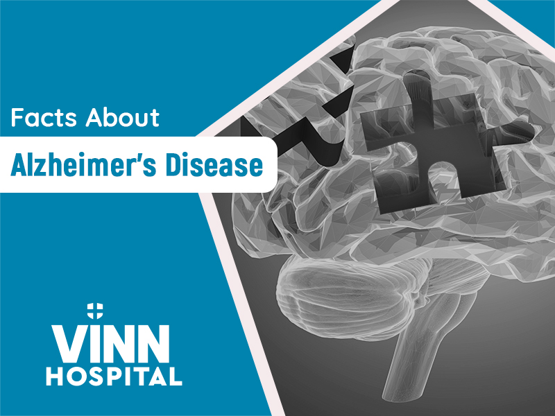 All You Need To Know About Alzheimer's Disease