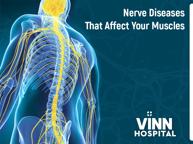 Nerve Diseases That Affect Your Muscles