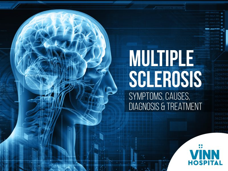 Multiple Sclerosis Treatment in Hyderabad